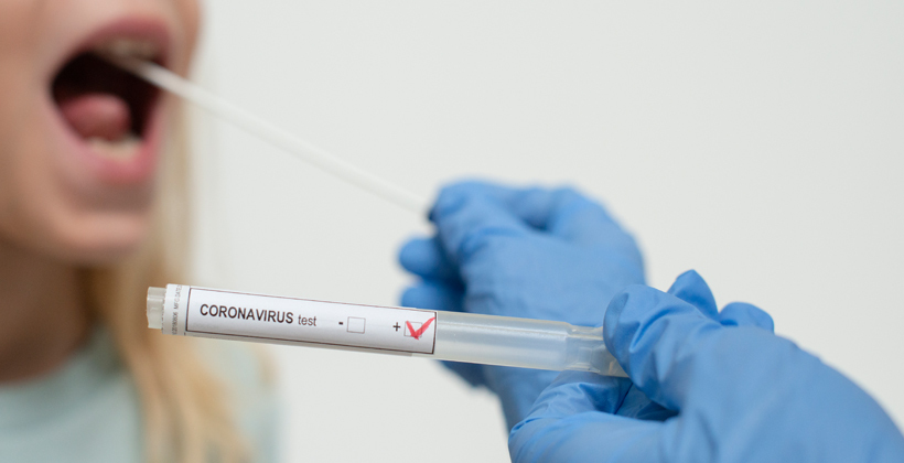 No case for complacency as virus cases trend down