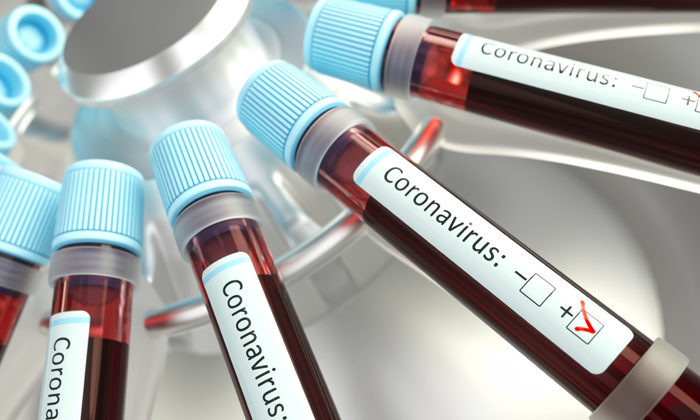 Weekend test lull lowers new COVID-19 cases