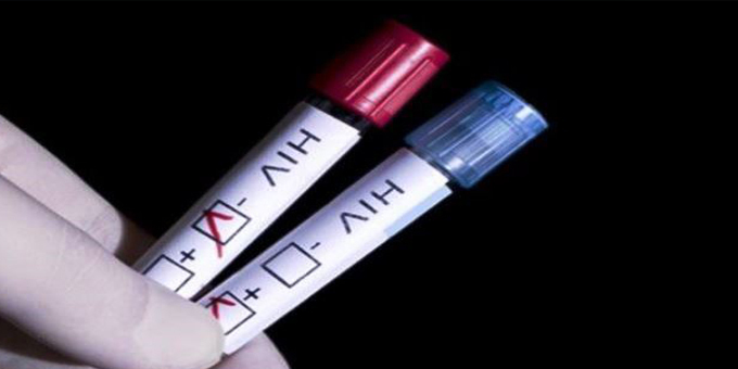 Maori HIV infections remain high